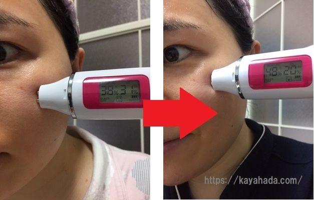 ライスパワー化粧品【ライスフォース】の効果口コミ
